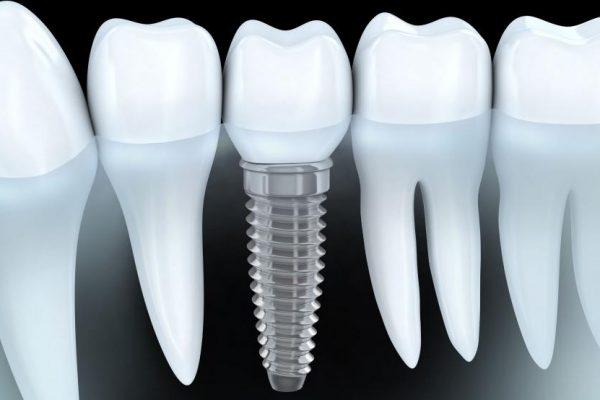 Implantologia – implanty stomatologiczne Łódź - klinika Neo Beauty